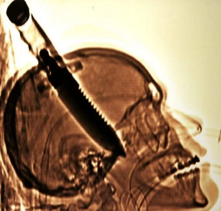 Самый большой предмет извлеченный из черепа